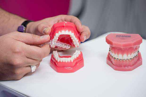 Invisalign Dental System | Gentle Dental Care